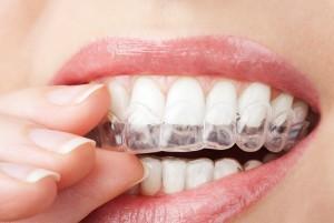 Få en bideskinne hos tandlægen